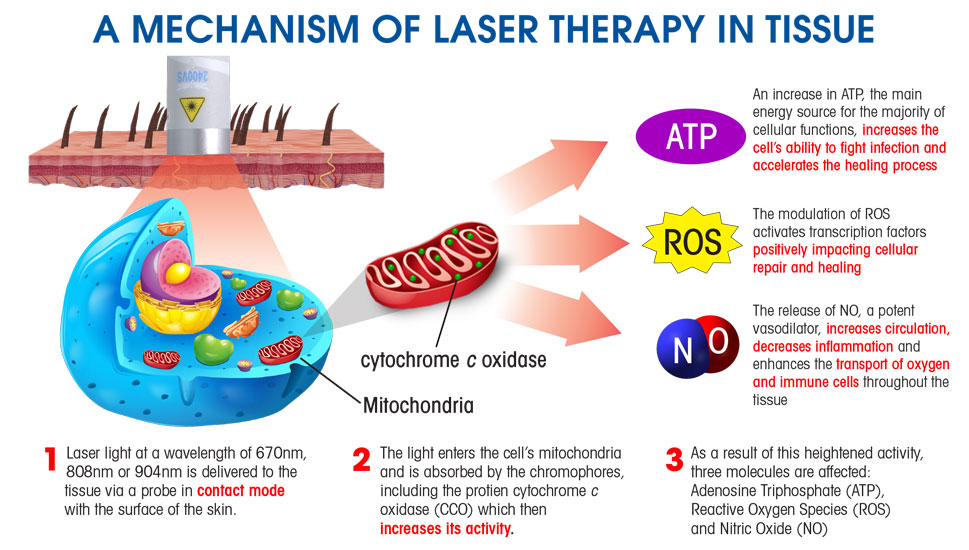 There are no side effects and many times laser therapy can take the place of pharmaceuticals and surgery to treat long-term degenerative diseases.  sc 1 st  Respond Systems : low light laser therapy side effects - www.canuckmediamonitor.org